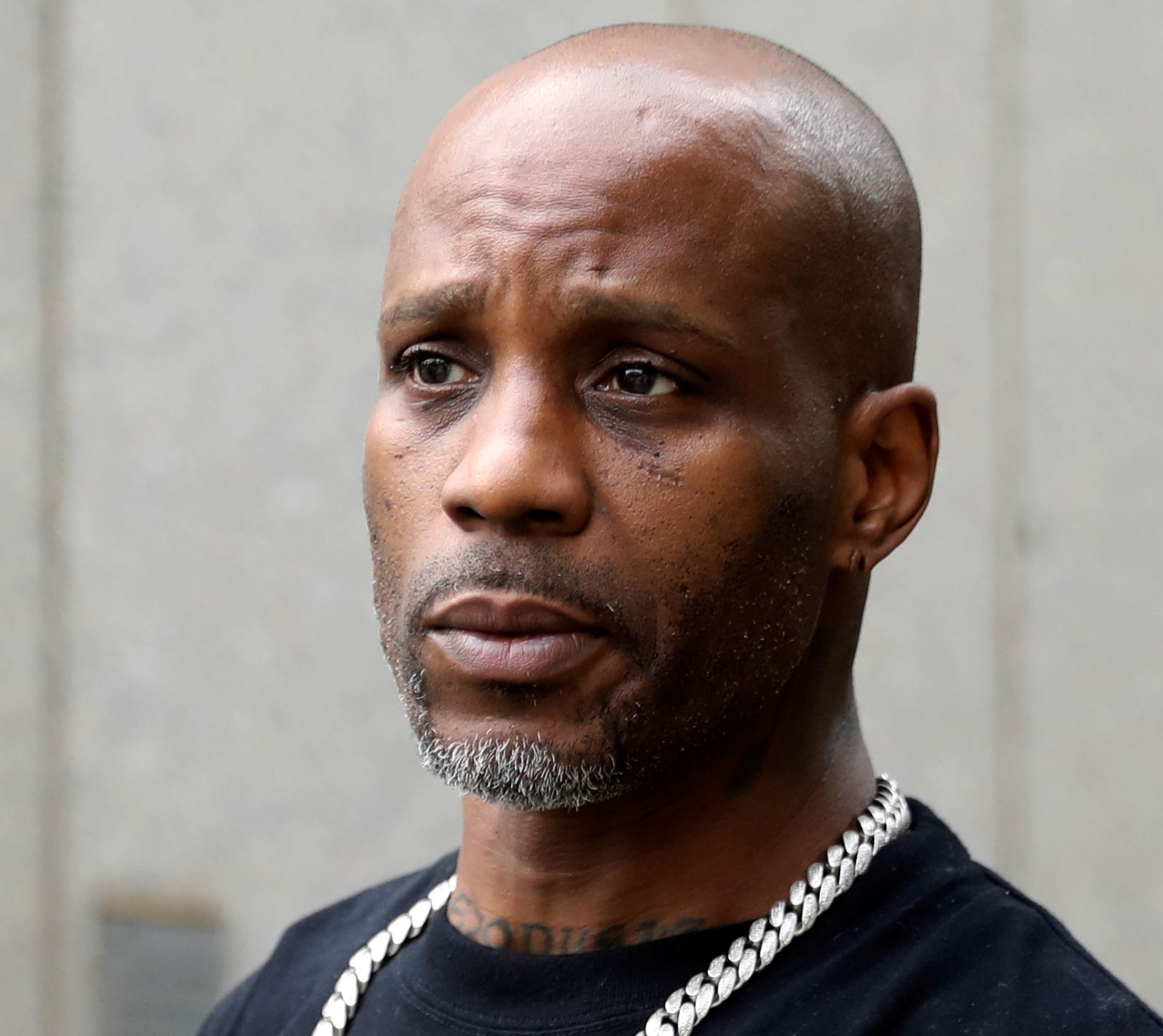 DMX still uses respirators – will test brain function – VG