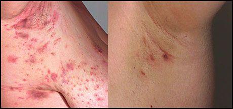 Armhulen kløe i Farlige symptomer: